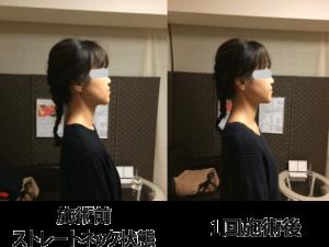 Straight neck2