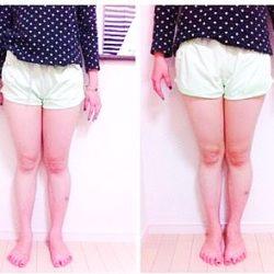 cellulite_legs2_hop