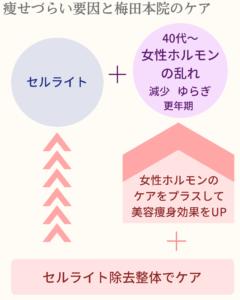 痩せづらい要員をケアする大阪梅田本院のセルライト除去